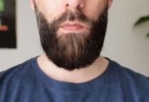 Transplantacja włosów – kiedy warto się na nią zdecydować